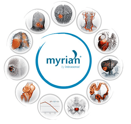 Intrasense Myrian By Intrasense